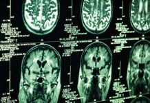 New Technology could Deliver Drugs to Brain Injuries