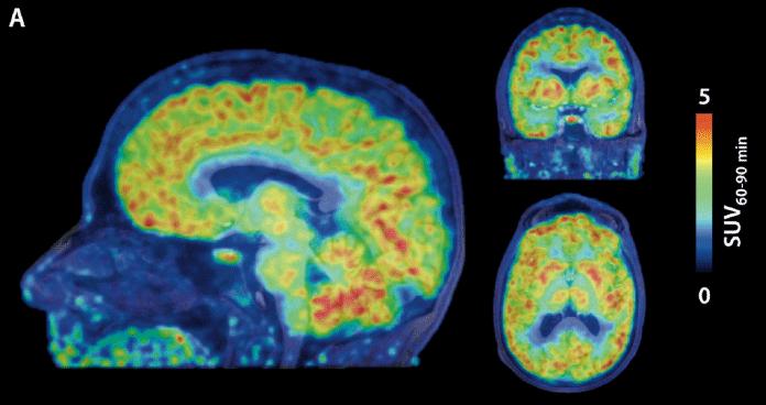 New PET radiotracer reveals epigenetic activity of human brain