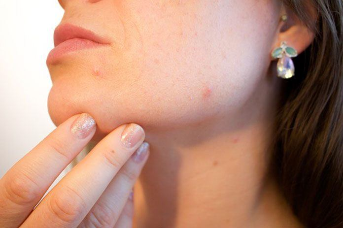 People With Acne Appear To Be Protected Against The Signs Of Ageing