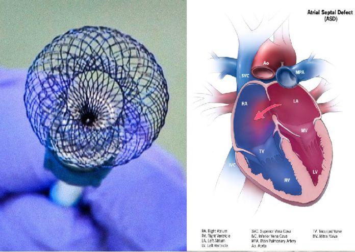 New Technique Heals Heart Problems With Non-Invavisive Surgery