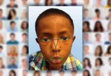 Researchers Use Facial Recognition Software to Diagnose a Rare, Genetic Disease