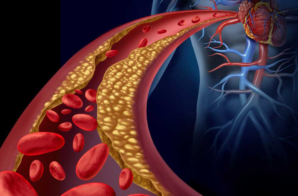 Research Team Uses 3 D Printing To Engineer Model Blood Vessels