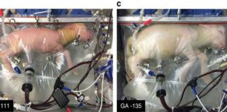 This Artificial Womb Just Successfully Grew a Sheep, Humans Could Be Next