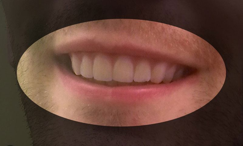 College Student 3D Prints Cheap DIY Retainers to Fix His Crooked Teeth