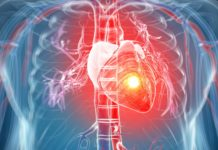 16-Year Study Suggests Air Temperature is External Trigger for Heart Attack