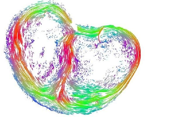This is How Human Fetal Heart Develop in Womb