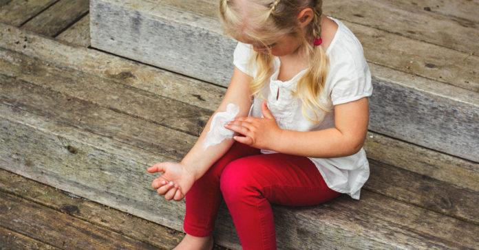 Finding the Best Moisturizer for Treating Eczema in Children