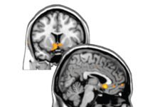 Self-Esteem Mapped in the Human Brain