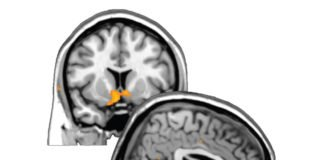 Self-Esteem Mapped in the Human Brain