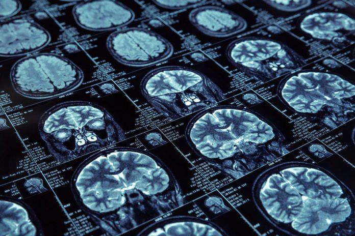 Simplifying Brain-Imaging Data to Foster More Transparency, Discoveries