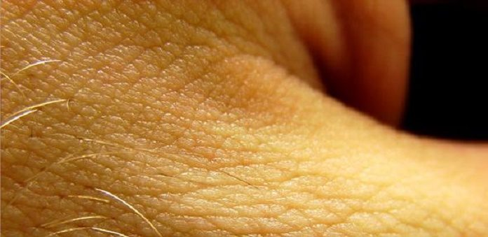 Skin Plays a Role in Controlling Blood Pressure