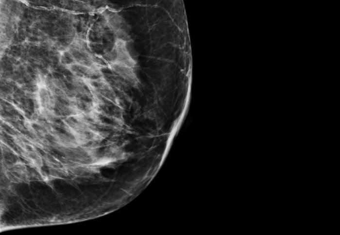 Improving Breast Cancer Treatment using AI