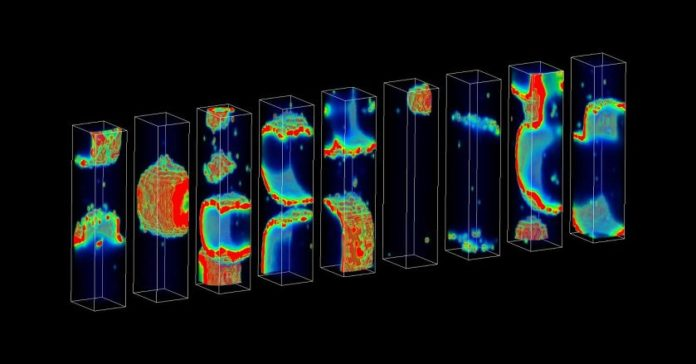 Computer Model to Detect Cardiac Problems