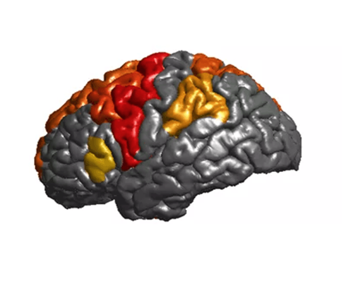 Epilepsy linked to brain volume and thickness differences