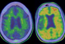 Scientists developed a monoclonal antibody-based treatment for Alzheimer's disease