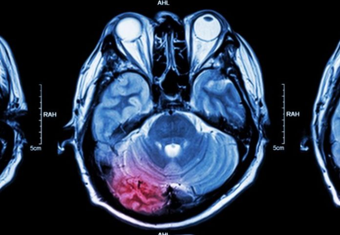 A new project launches to avoid stroke in patients with brain bleeding