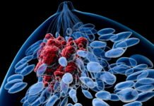 Researchers find a potential new treatment for advanced cancer