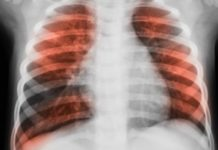 Glucose in the airways could increase infections in lung disease patients