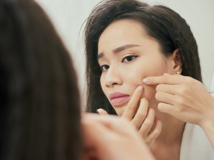 Having acne can increase your risk of depression
