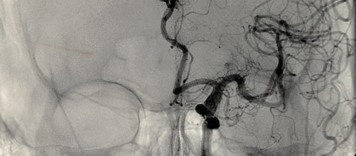 Frontal view of a cerebral angiography. The cerebral angiography consists of injecting the dye into the arterial circulation of the brain followed by a series of x-ray images. The dye takes about 4-5 seconds to go from arteries to capillaries and finally to the veins in the brain.