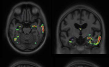 brain imaging result