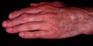 The hand of an adult patient suffering from Still's disease