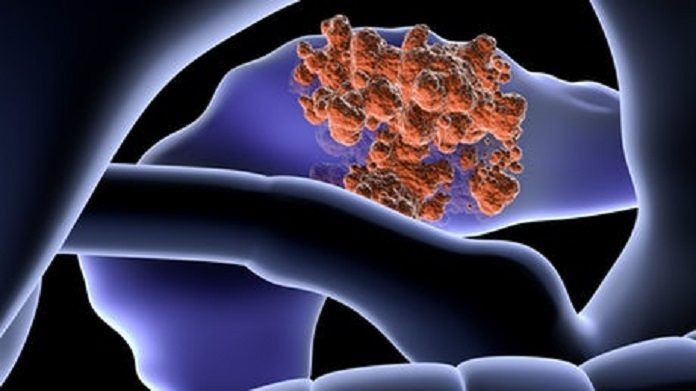 Scientists successfully prevent the growth of pancreatic cancer