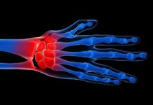 Looming dearth of rheumatologists is major concern of researchers