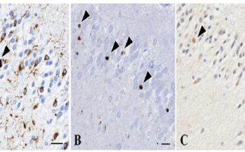 Tau proteins accumulated in the brain of a patient with PSP-like symptoms. (Yabe I. et al., Scientific Reports, January 16, 2018)