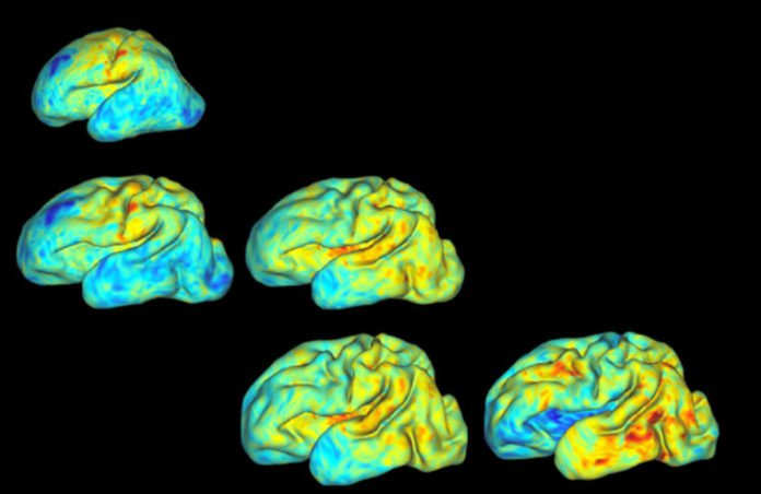 A team of scientists at Washington University in St. Louis has developed a new way to track folding patterns in the brains of premature babies. It's hoped this new process could someday be used for diagnosing a host of diseases, including autism and schizophrenia. (Image: Bayly Lab)