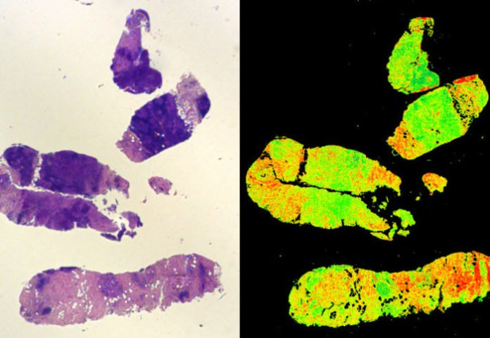 A traditional stained biopsy (L) and a Digistain view (R
