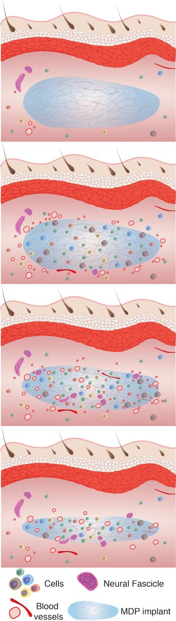 An illustration shows how over six weeks, from top to bottom, a hydrogel developed at Rice University aids tissue remodeling. The process begins with cell infiltration followed by vascularization, innervation and slow degradation of the hydrogel as it is replaced by healthy tissue. Courtesy of the Hartgerink Research Group