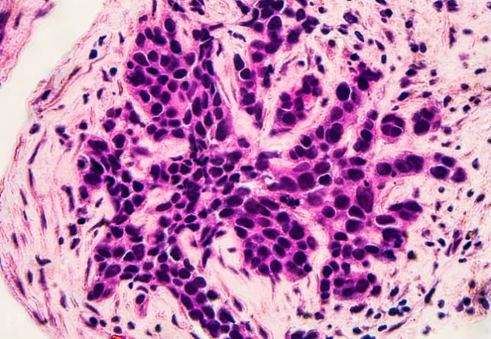Biopsy of breast cancer