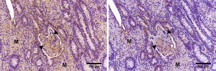 Immunohistochemical analysis showing expression of PGE2 (left) and PD-L1 (right) in the ileal mucosa of a cow with Johne's disease.