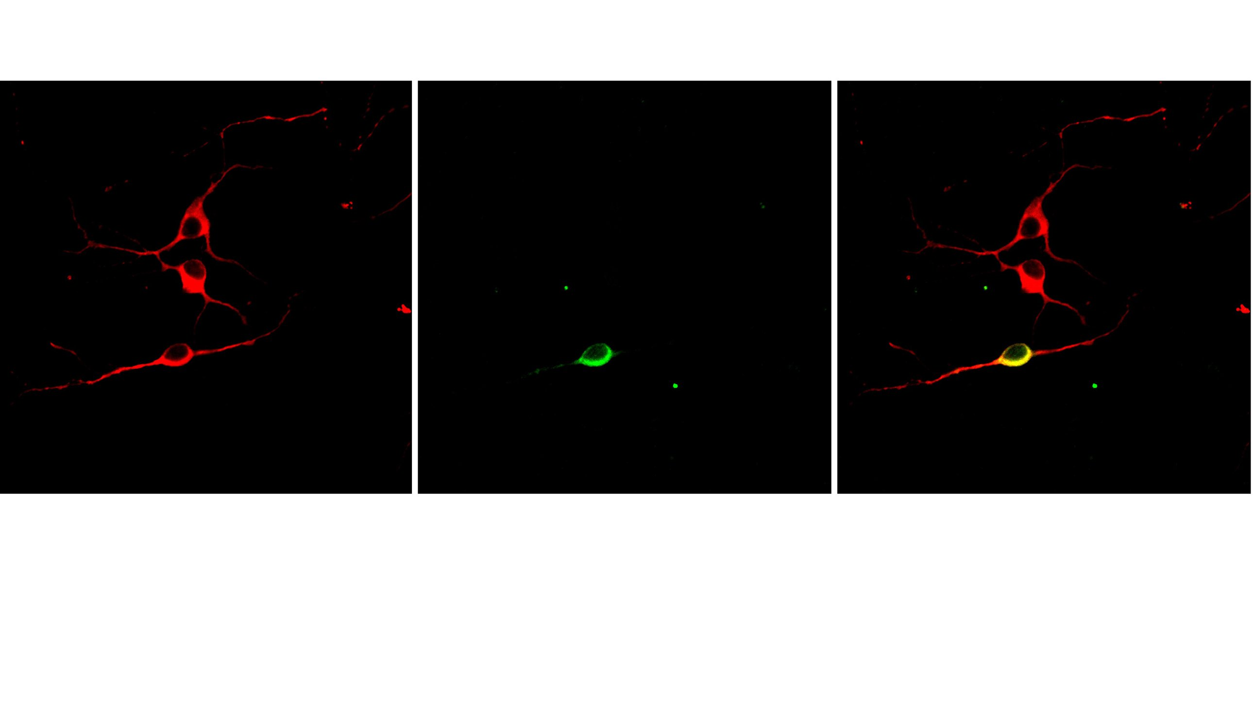 These images of a brain cell culture show dopamine neurons similar to those that die in the brains of Parkinson's disease patients. The image on the left shows a cell culture stained to reveal a marker present in all neurons (red) or only in dopamine neurons (green). The right panel shows a merged image in which a dopamine neuron is stained yellow. (Purdue University image/Aswathy Chandran)