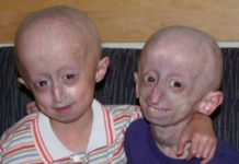 children with progeria