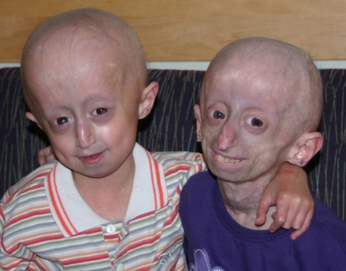 children with progeria