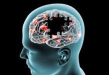Brain degenerative diseases Parkinson, Alzheimer, puzzle
