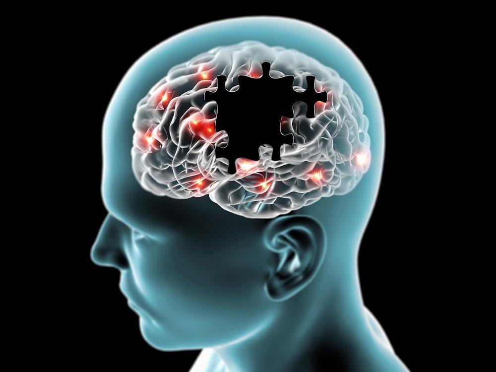 AI Detecting Dementia Years Before Symptoms Appear