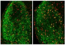 Microglia (red) gradually clear away the neuronal debris (green) produced following damage to the optic nerve. CREDIT Norris et al., 2018