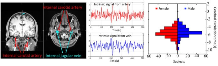 This graphic shows the procedure of identifying and extracting intrinsic signals from big arteries and veins in an fMRI scan, and using them to calculate the cerebral circulation time of young healthy males and females.