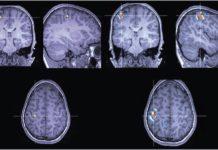 epilepsy_brain