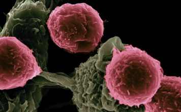 Victor Segura and Rita Serda/NIH T cells (pink) scanning host cells (green) for evidence of infection.