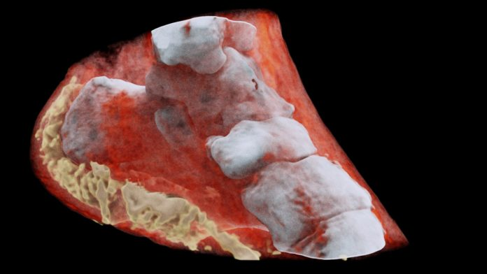 A 3D MARS image of an ankle viewed from the side where the soft tissue (coloured in red) has been made translucent to show the bones (white) and lipid-like material (yellow) inside the ankle.