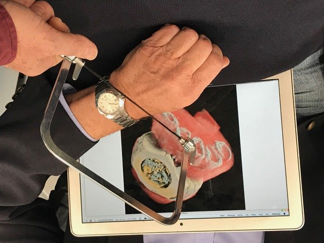Prof Phil Butler displays the area of his wrist that was scanned as one of the first human images taken using the MARS large bore spectral scanner.