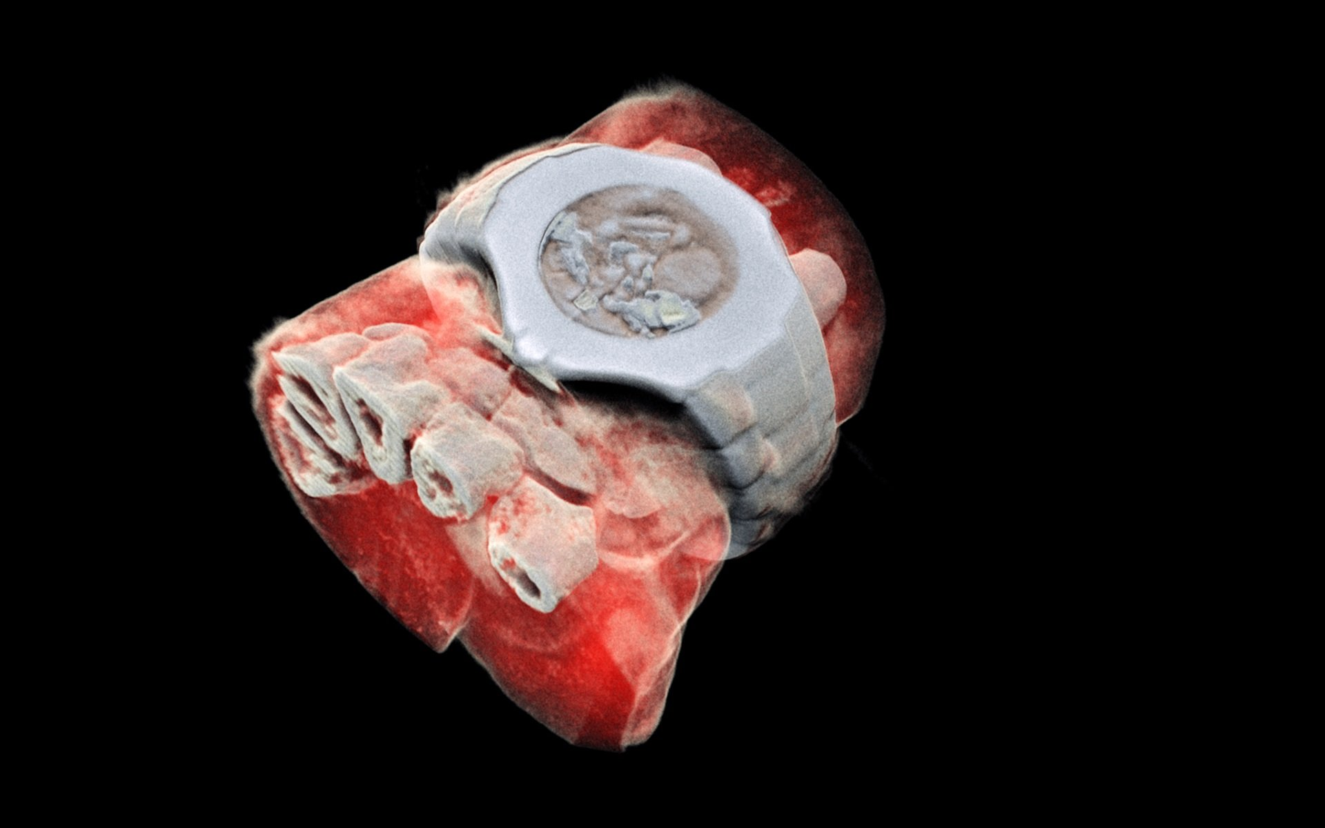 A 3D MARS image of a wrist with a watch showing part of the finger bones in white and soft tissue in red.