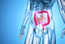 A healthy lifestyle reduces the risk of colon cancer