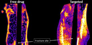 Novosteo, a Purdue-affiliated startup, is advancing a technology shown to repair bone fractures faster and at greater benefit to a patient. The image above shows fractured femurs at four weeks post-fracture. The 'Targeted' bone received Novosteo's injectable-targeted drug. Yellow and orange colors indicate higher density bone than purple and blue. (Image provided by Novosteo)