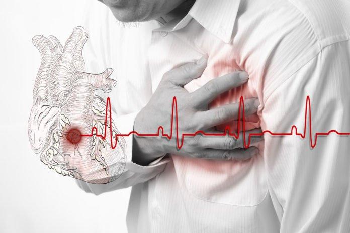 Heart Attack and heart beats cardiogram