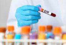 Blood test - Alamy